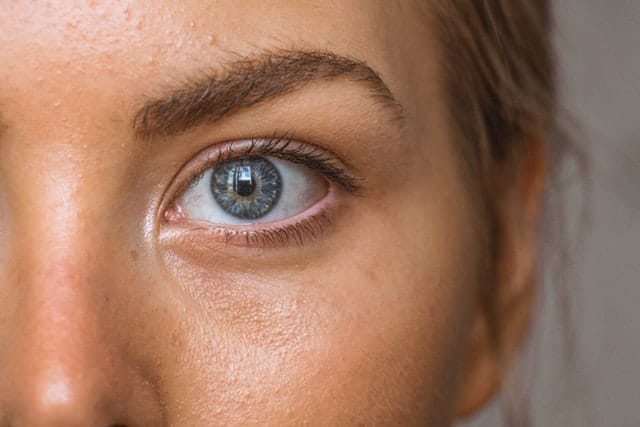 How to make your eyes look bigger without makeup - skin around the eye