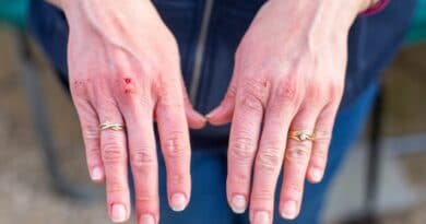 home remedies for cracked hands - hands
